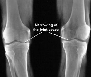 arthritis in the knee